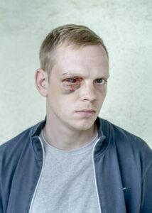 ASGER LADEFOGED/BERLINGSKE   Fotografia del reportaje ganador del Visa de Oro de la Prensa Diaria 2021, del danés Asger Ladefoged para el periódico <em>Berlingsk</em>e sobre la represión en Bielorrusia después de la reelección fraudulenta de Aleksandr Lukashenko, en agosto del año pasado: la imagen recoge la herida en el ojo del joven Aleksandr, de 26 años, por los golpes de la policía que lo detuvieron cuando volvía de una manifestación